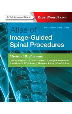 ATLAS OF IMAGE-GUIDED SPINAL PROCEDURES, 2ND EDITION