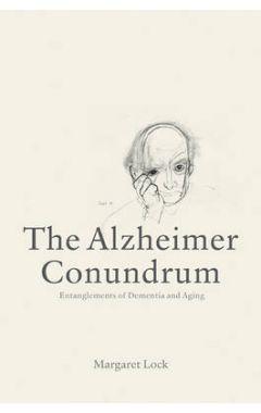Alzheimer Conundrum
