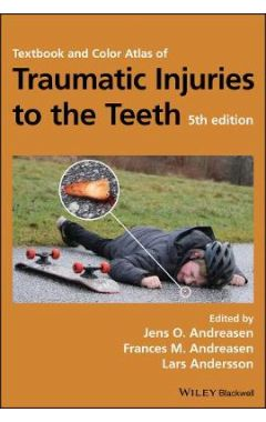 Textbook and Color Atlas of Traumatic Injuries to the Teeth 5e