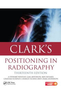CLARK'S POSITION IN RADIOGRAPHY 13E