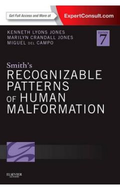 SMITH'S RECOGNIZABLE PATTERNS OF HUMAN MALFORMATION 7E