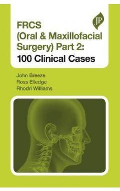 FRCS (Oral & Maxillofacial Surgery) Part 2: 100 Clinical Cases