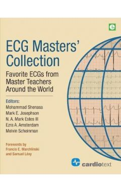 ECG Masters Collection vol 1: Favorite ECGs from Master Teachers Around the World