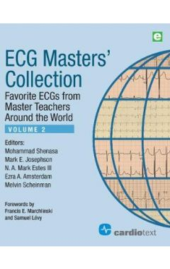 ECG Masters Collection, Volume 2: Favorite ECGs from Master Teachers Around the World