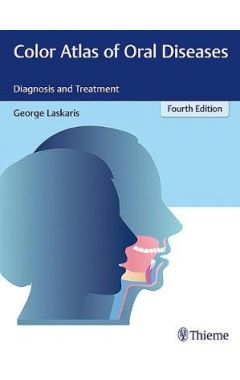 Color Atlas of Oral Diseases: Diagnosis and Treatment 4e