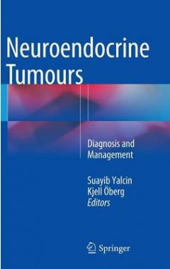 NEUROENDOCRINE TUMOURS DIAGNOSIS AND MANAGEMENT