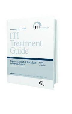 (VOL 7) ITI TREATMENT GUIDE