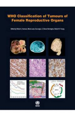 WHO CLASSIFICATION OF TUMOURS OF THE LUNG, PLEURA, THYMUS AND HEART 4E